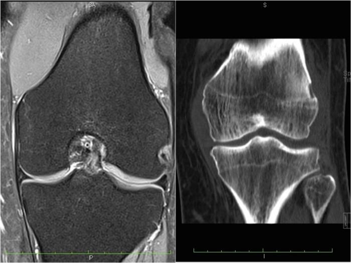 kolano MRI TK