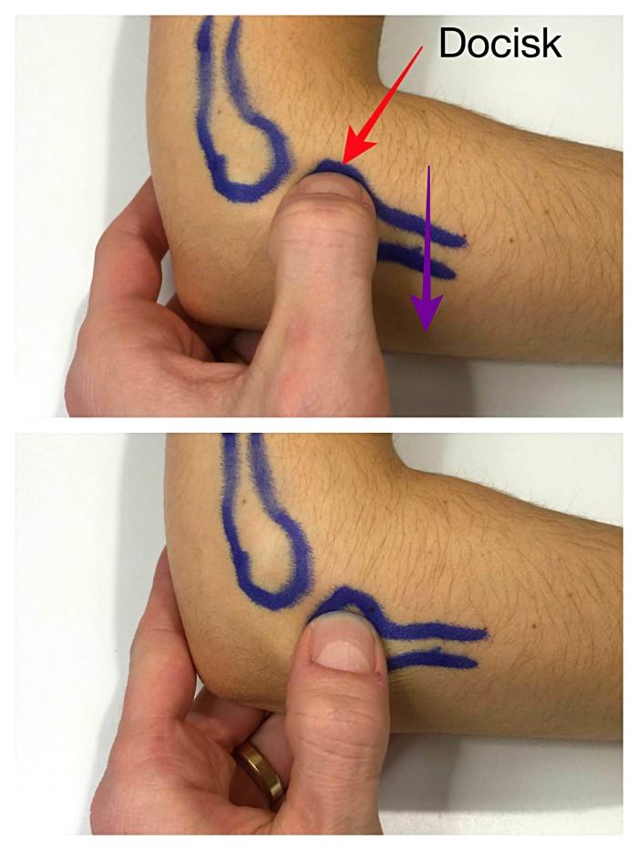 masaż poprzeczny łokcia tenisisty