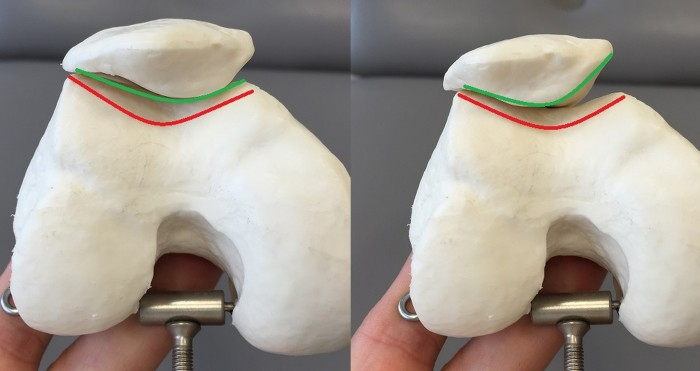 bloczek kości udowej